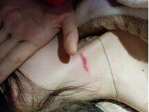 """在女朋友脖子上发现了""""吻痕"""",怎么回事"""