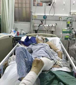 身家只有幾千塊,她把丈夫從ICU里救了出來