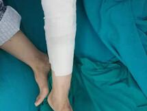 惠州一妇女小腿被烫伤,竟然还往伤口撒盐